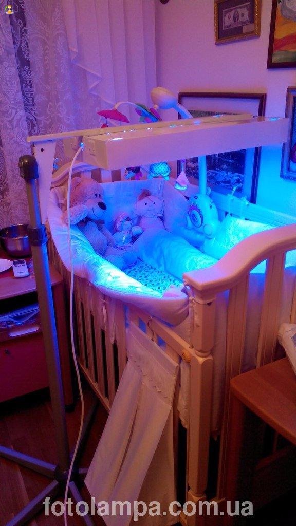 Лечение желтушки новорожденного в домашних условиях